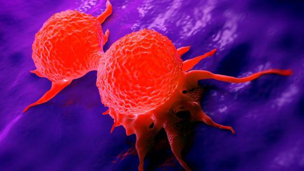 que es el cancer inflamatorio de seno)