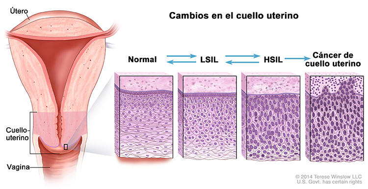 papiloma humano biopsia)