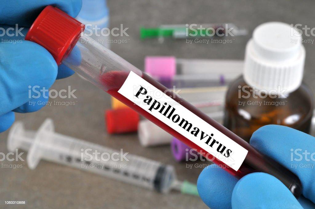 test de papillomavirus)
