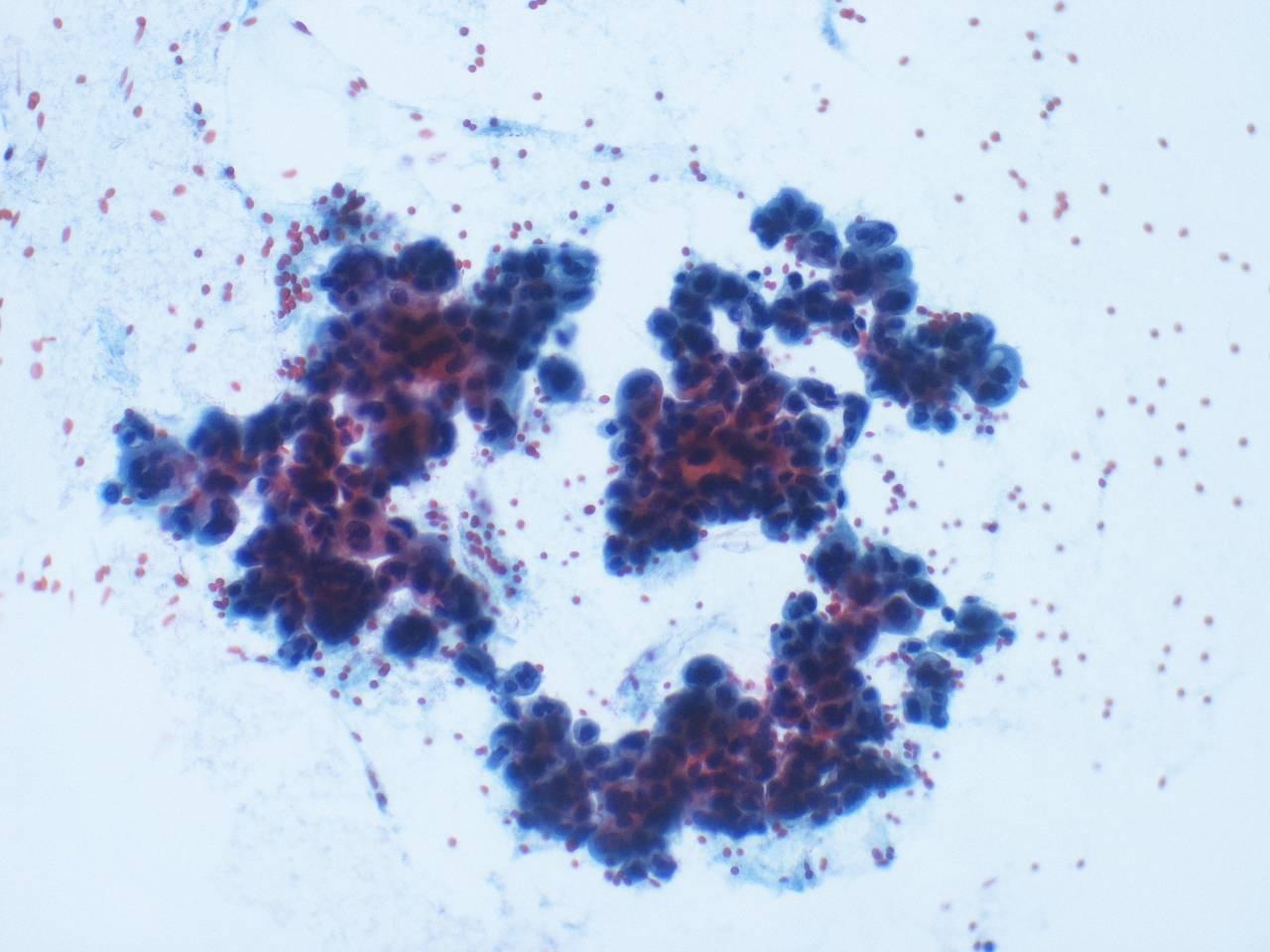 intraductal papilloma breast cytology