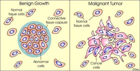 cancer vs benign)