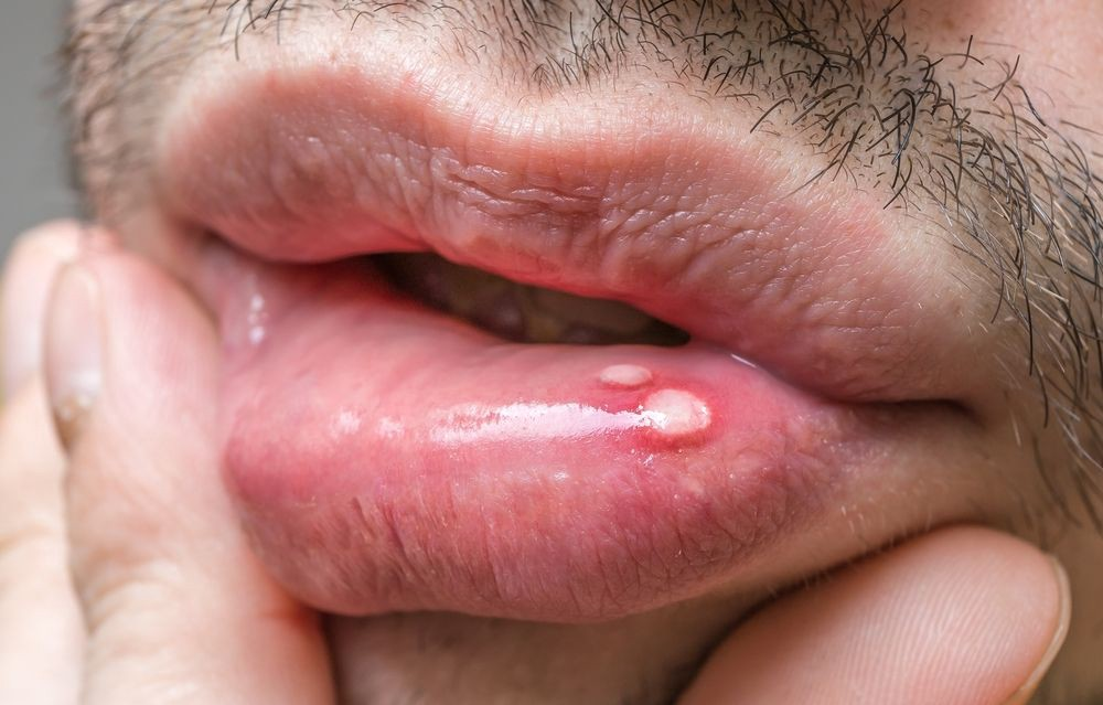 hpv warts lips pictures