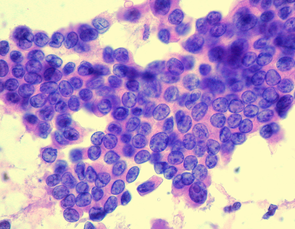 papillary thyroid cancer fna findings simptome ale infectiei cu paraziti intestinali
