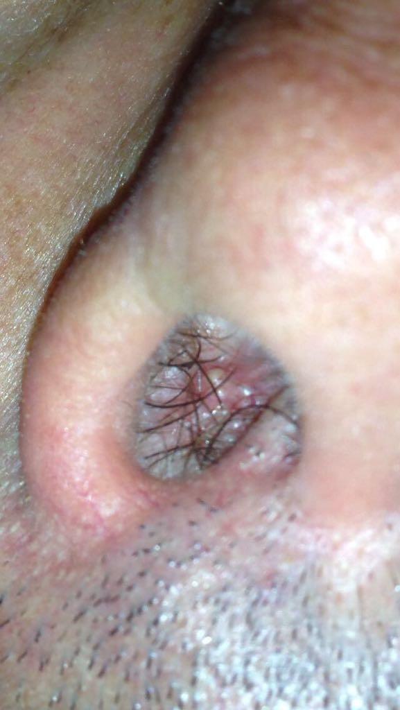 papilloma al naso