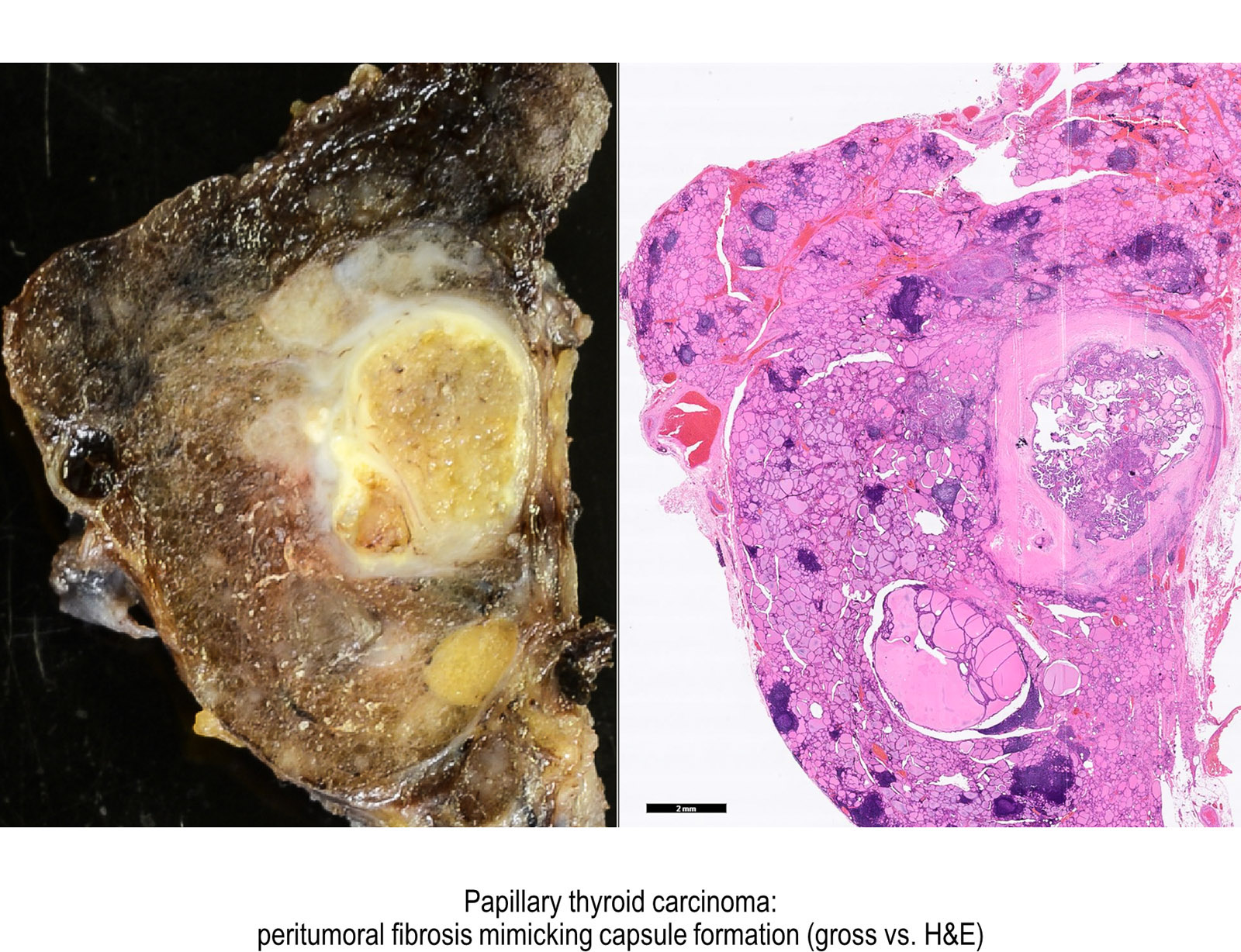 papillary thyroid cancer features)