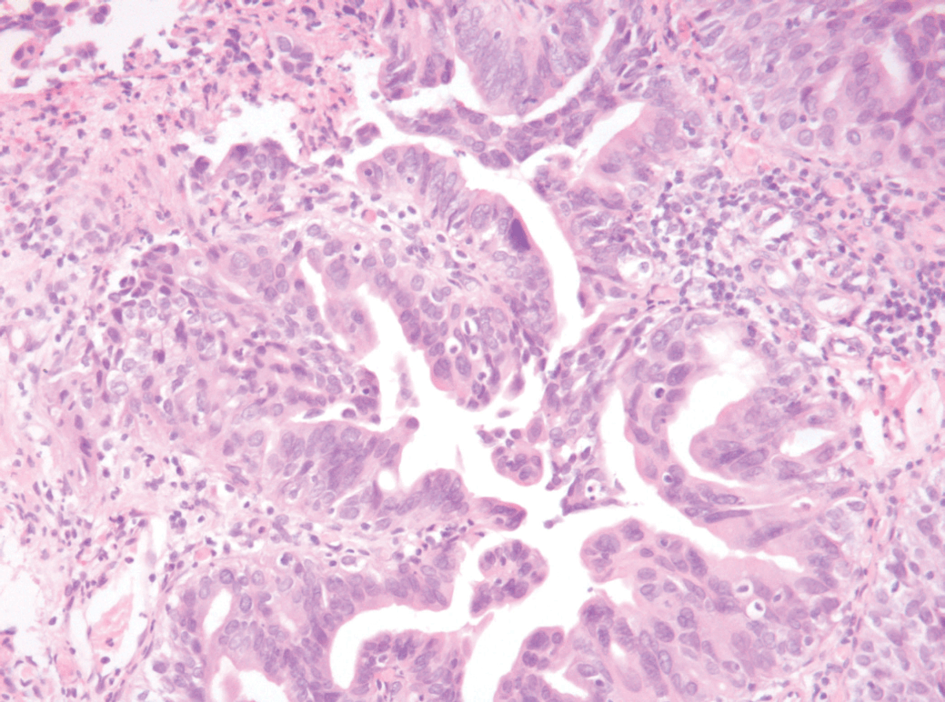 papillary urothelial carcinoma with glandular differentiation)