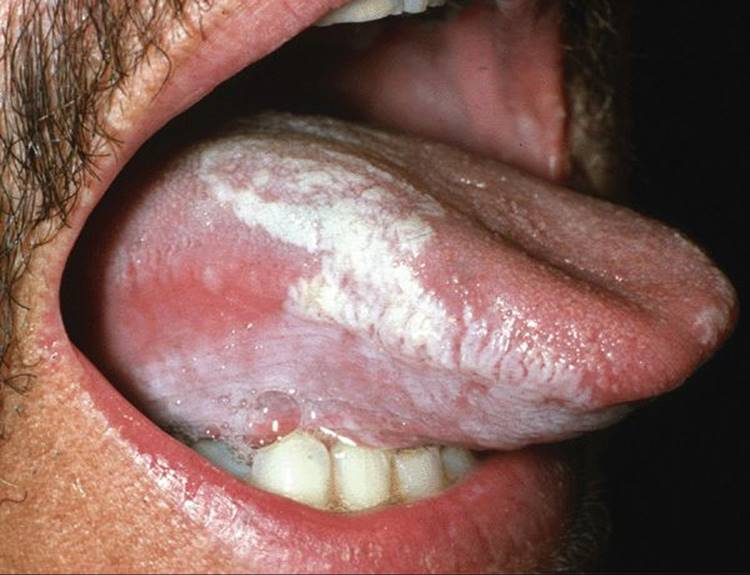 benign squamous papilloma tongue icd 10