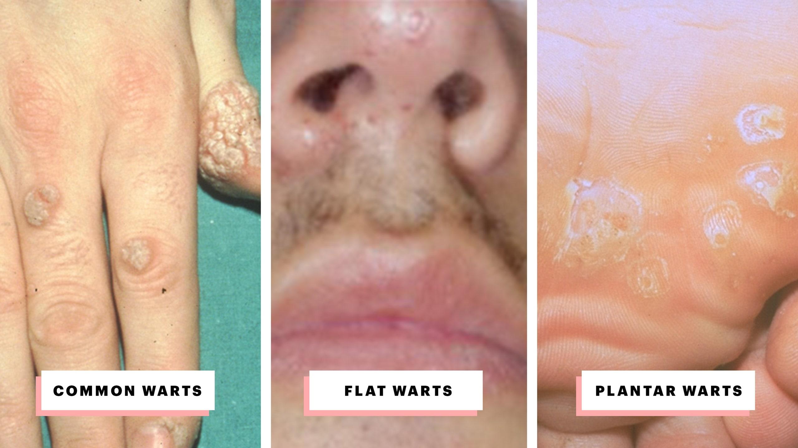 wart virus on neck)