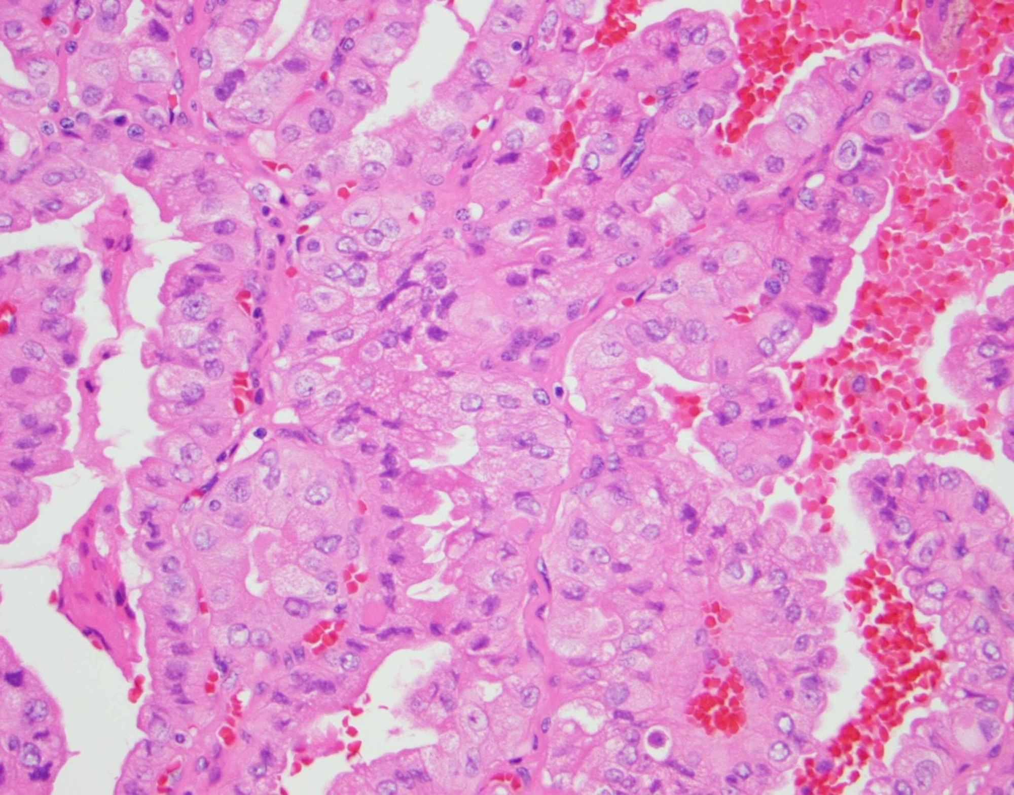 papillary thyroid cancer tall cell variant prognosis)