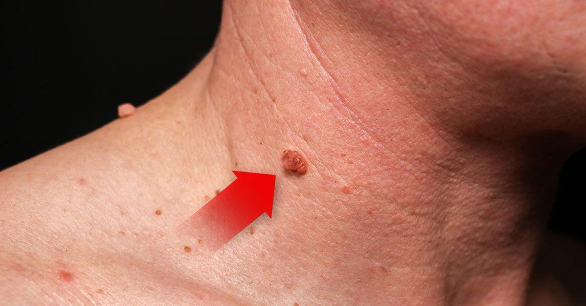 virus de papiloma humano provoca verrugas