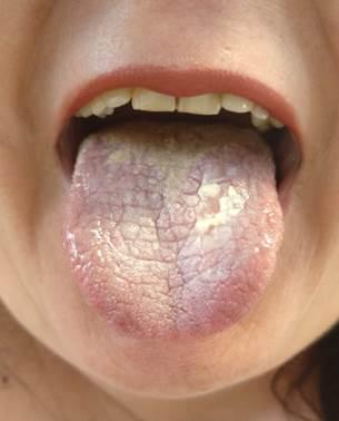 cirugia papiloma lingual