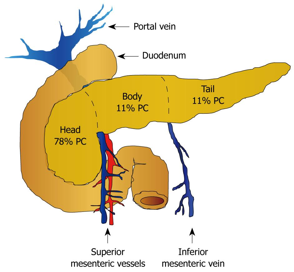 cancer de pancreas ninos