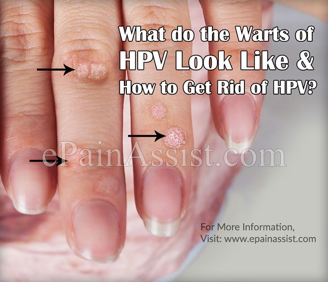 hpv warts get rid of cancerul la gat se trateaza