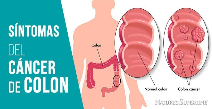 cancer de colon en sintomas