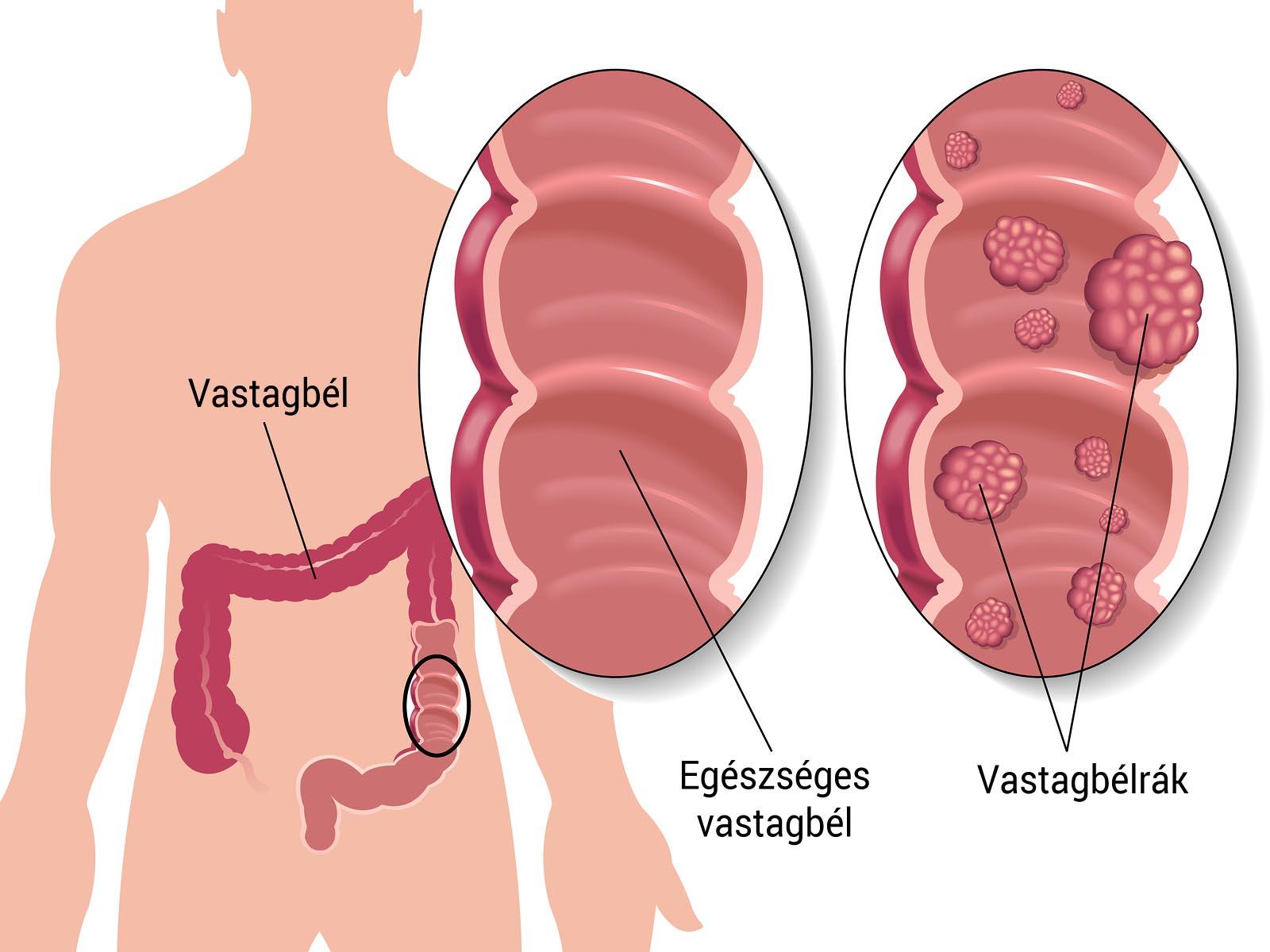 virus papiloma latente sintomi hpv utero