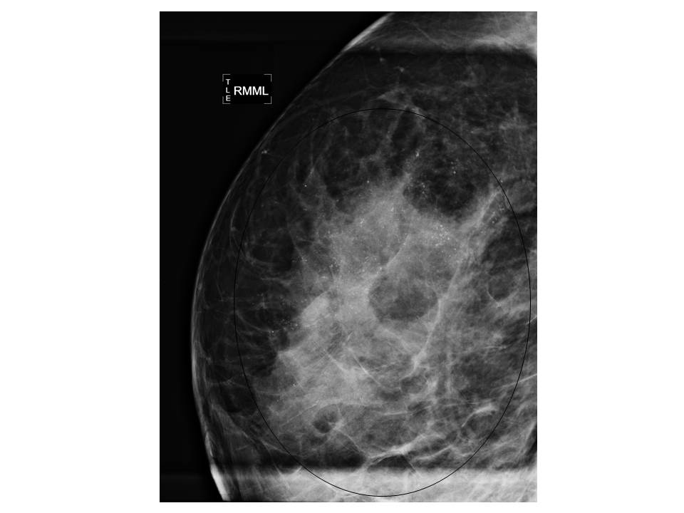 intraductal papilloma with calcifications