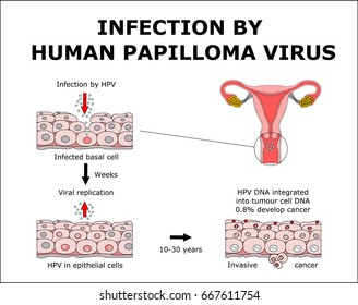 papilloma virus cancer)