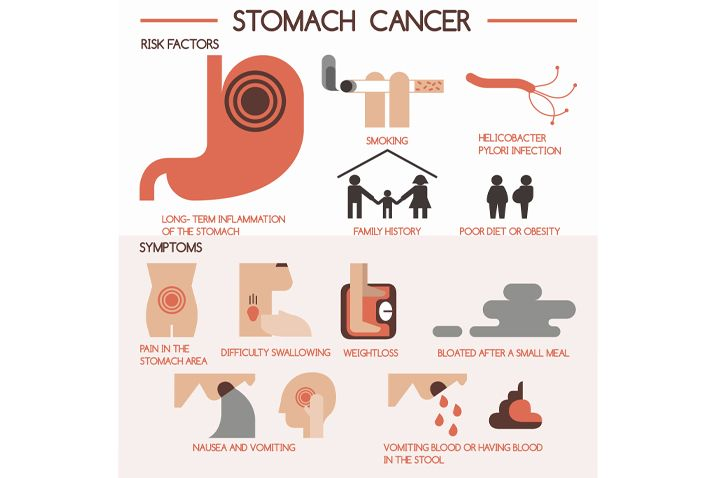 gastric cancer early diagnosis)