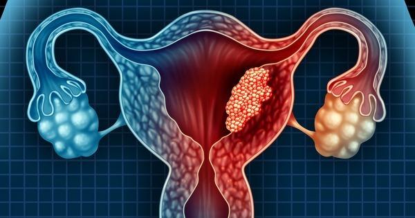 cancer uterin polip