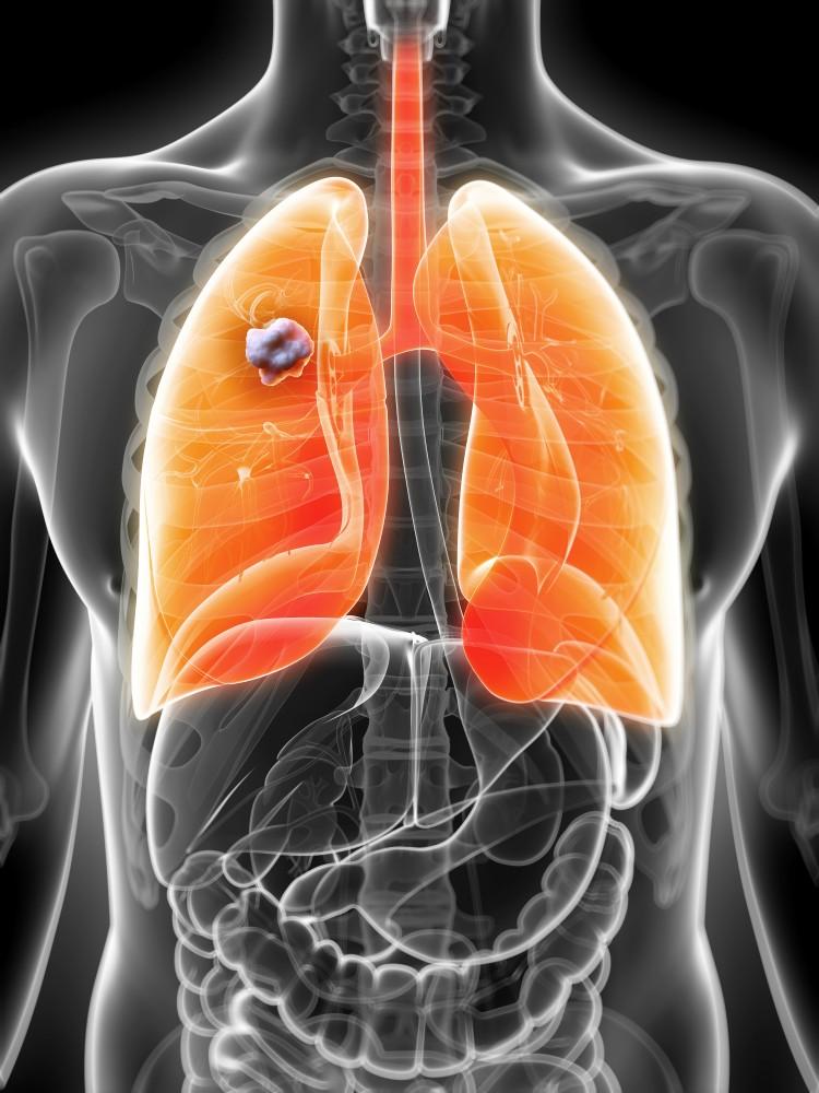 cancerul de plamani este contagios