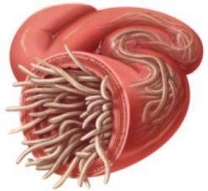 paraziti u crijevima simptomi)