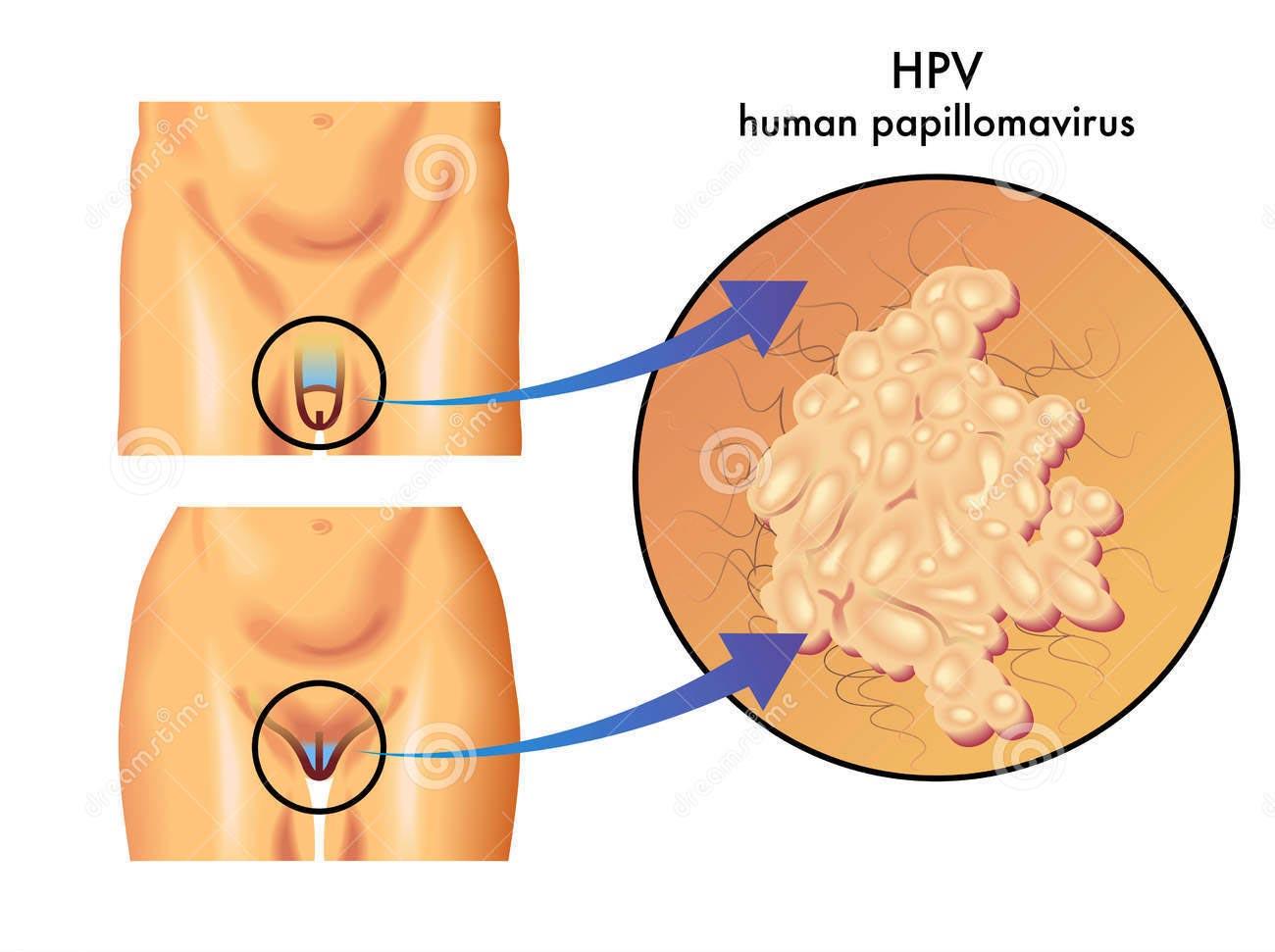papilloma virus su uomo)