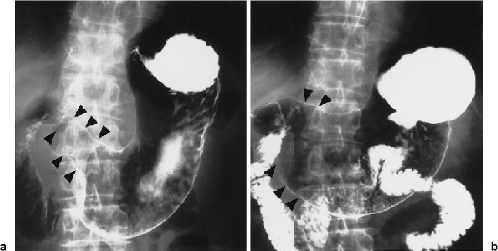 gastric cancer lung metastasis)