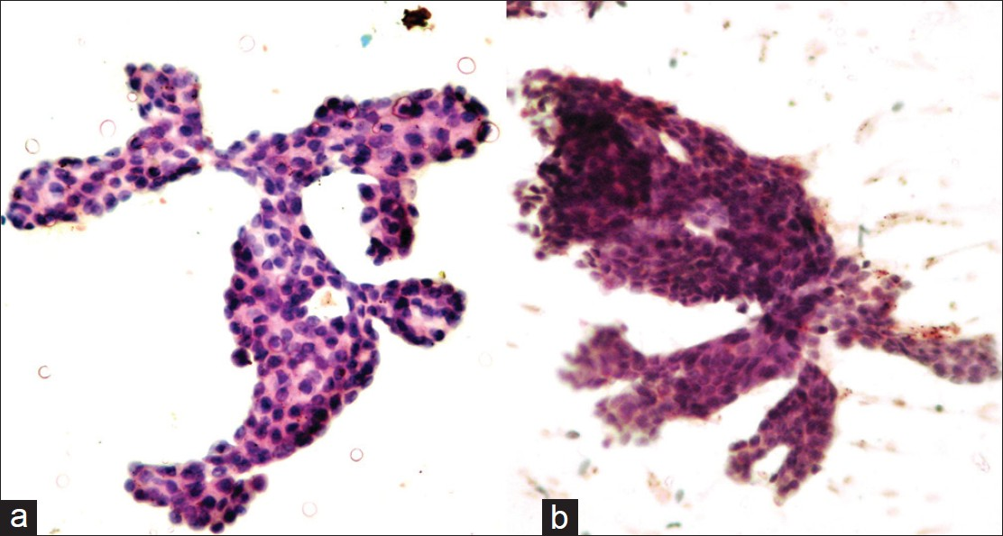 intraductal papilloma breast cytology