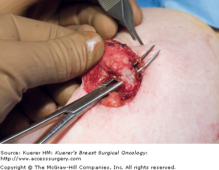 duct papilloma removal)