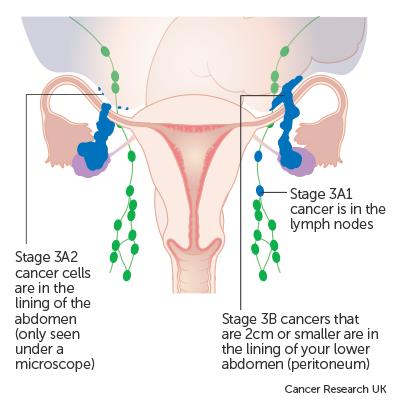 ovarian cancer types