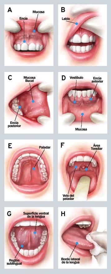 cancer bucal tiene cura