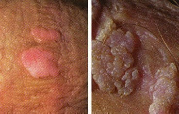 hpv warts feel like)