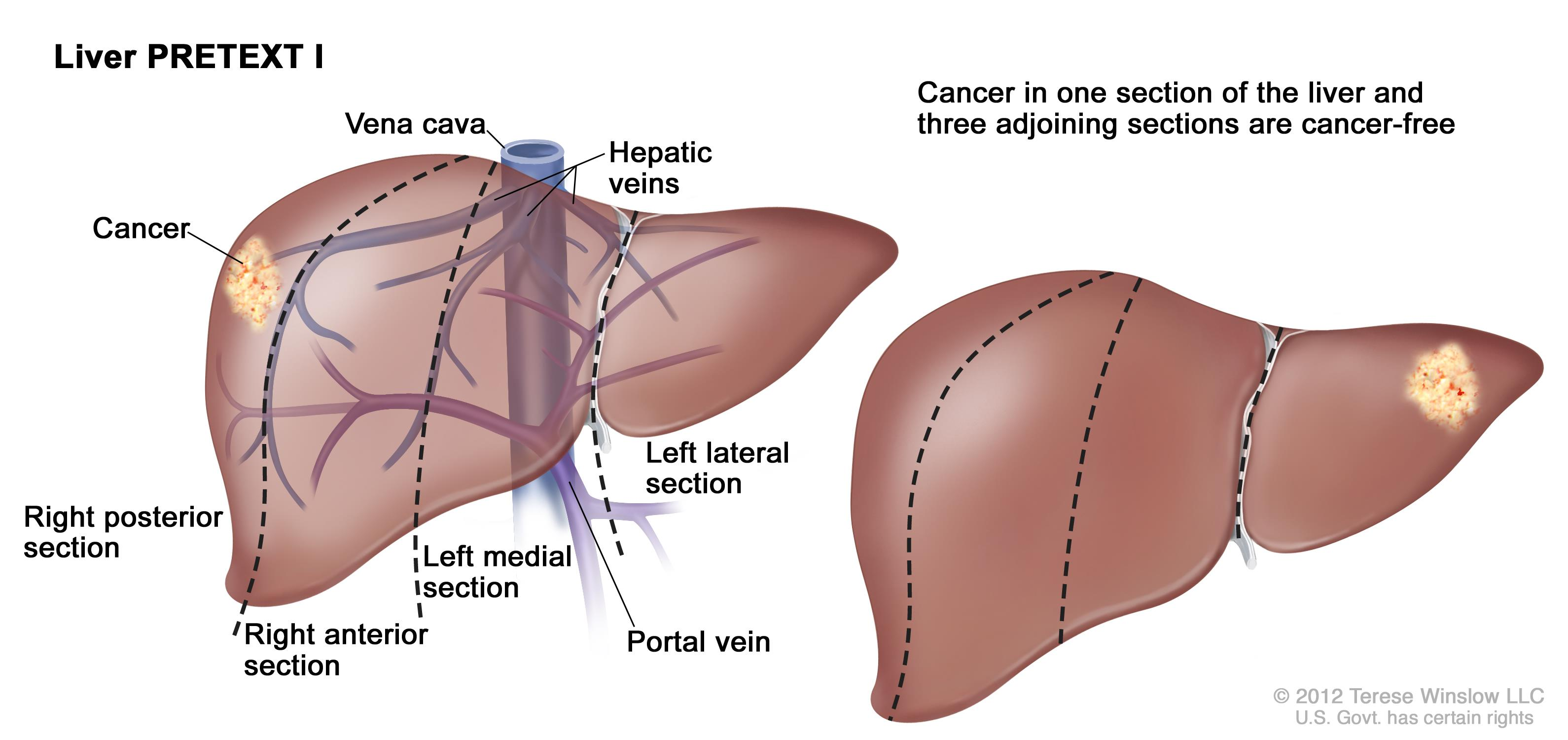 cancer in hepatic vein)