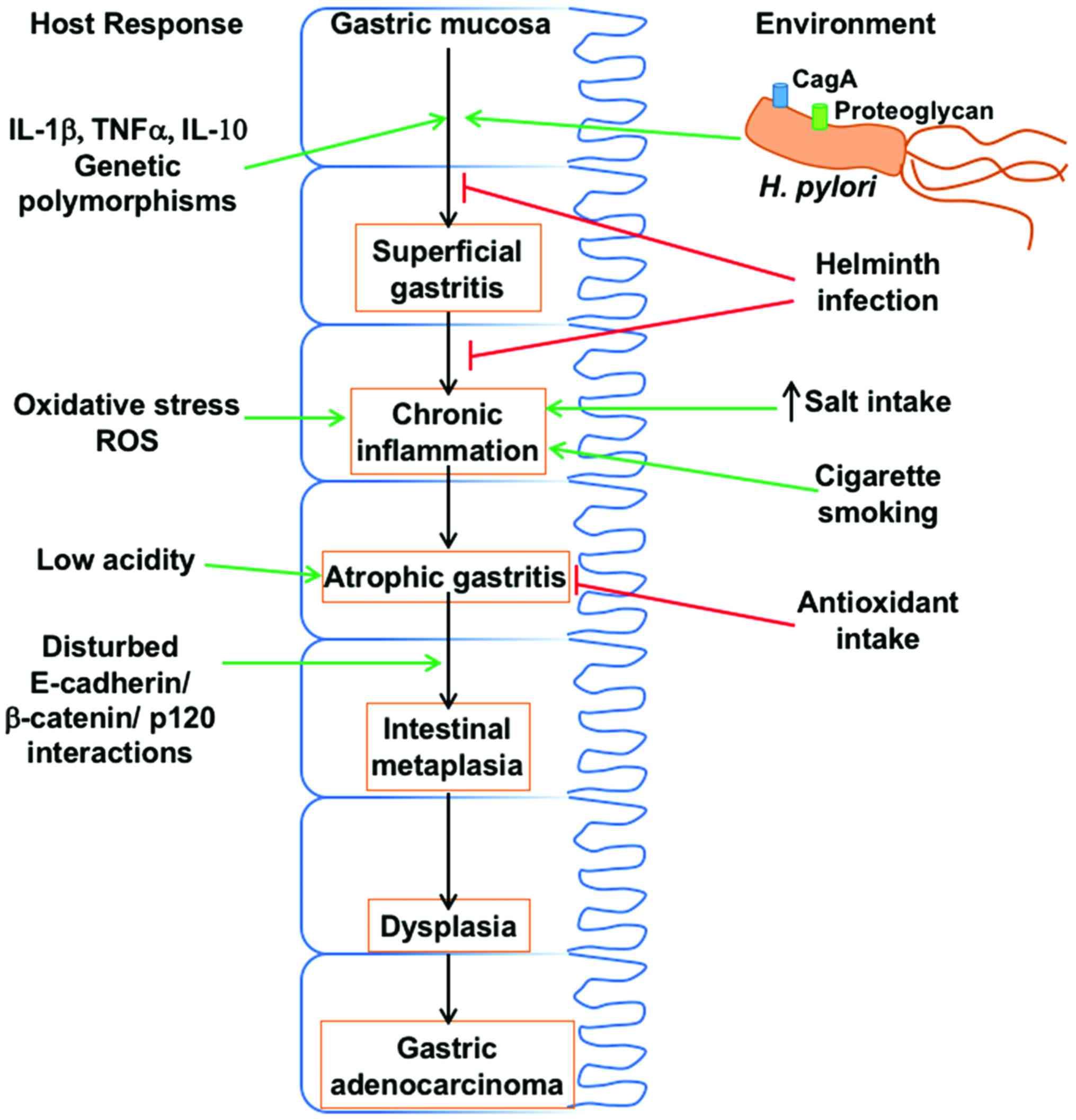Tipul intestinal de cancer gastric şi infecţia helicobacter pylori