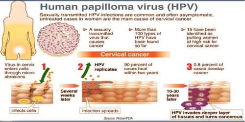 excision of papilloma cpt code que es el analisis papiloma