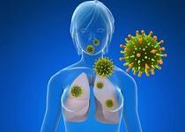 cancerul pulmonar cu celule mici)