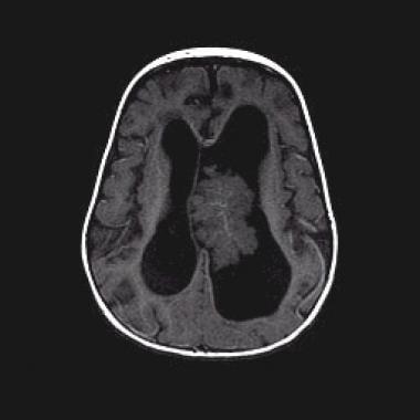 choroid plexus papilloma neonatal