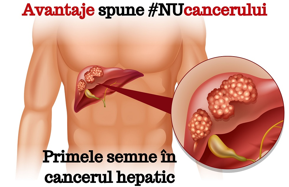 cancer pancreas ficat