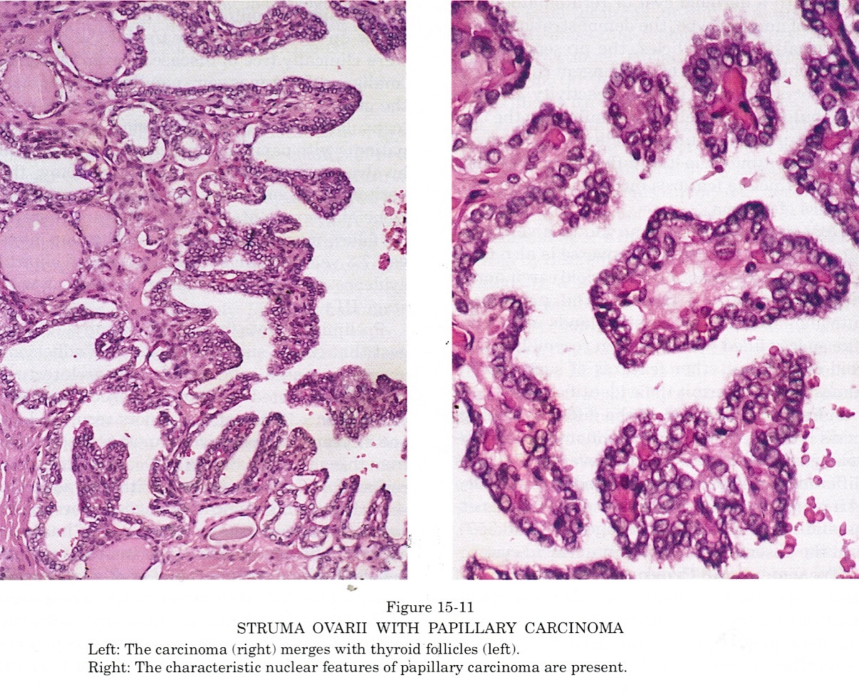 papillary thyroid cancer ovary)