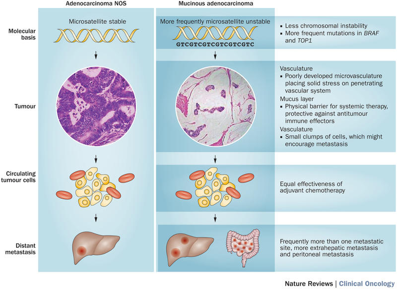 cancer colorectal mucus