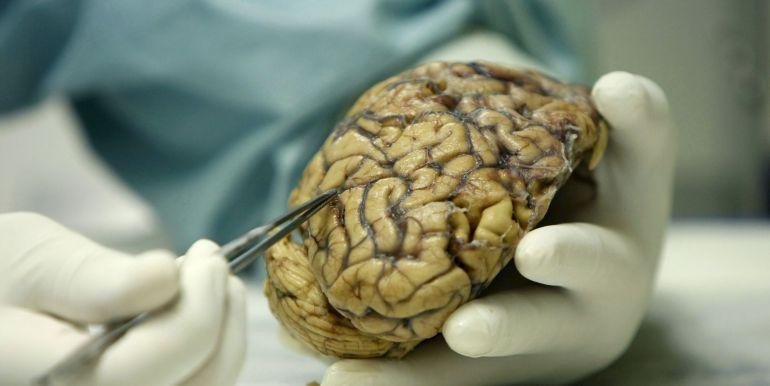 cancer cerebral agresivo)