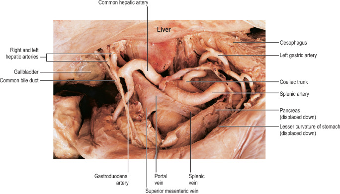 metale grele in apa gastric cancer keynote 059