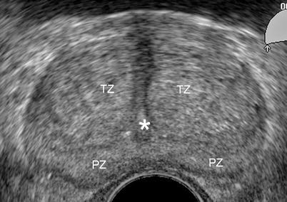 oxiuri urmari benign squamous papilloma uvula icd 10