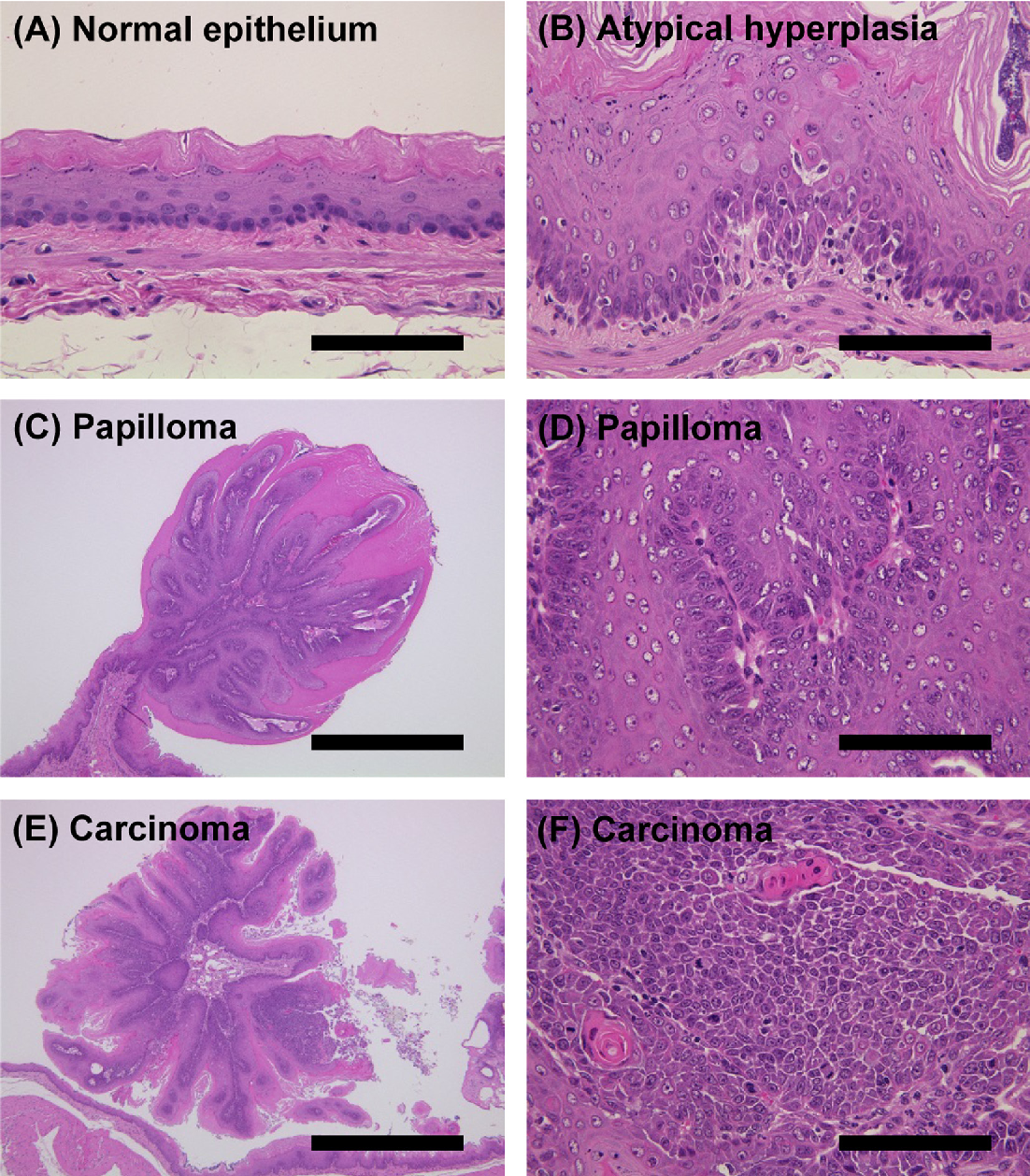 esophageal papillomas in rats)