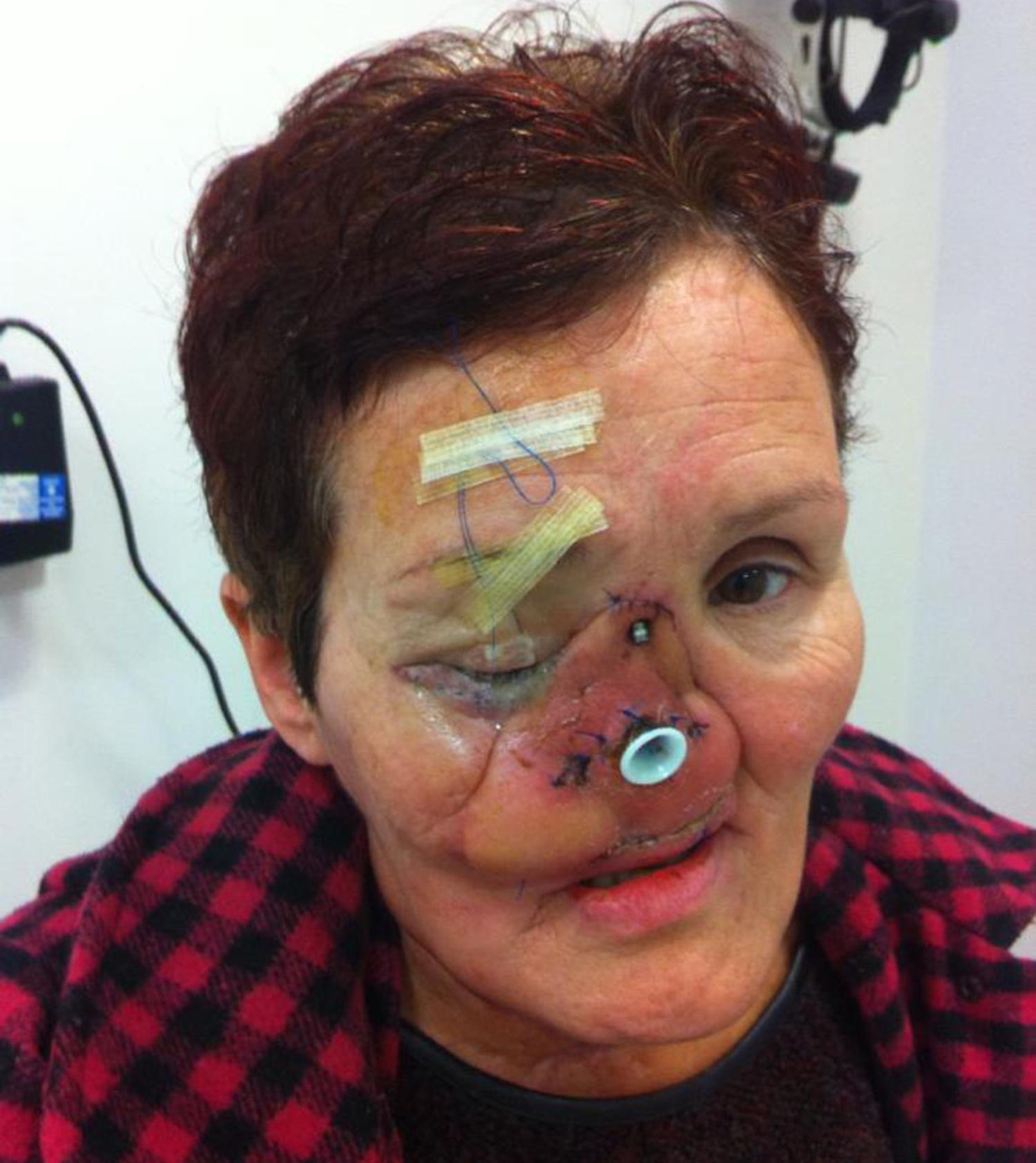 aggressive cancer nose)
