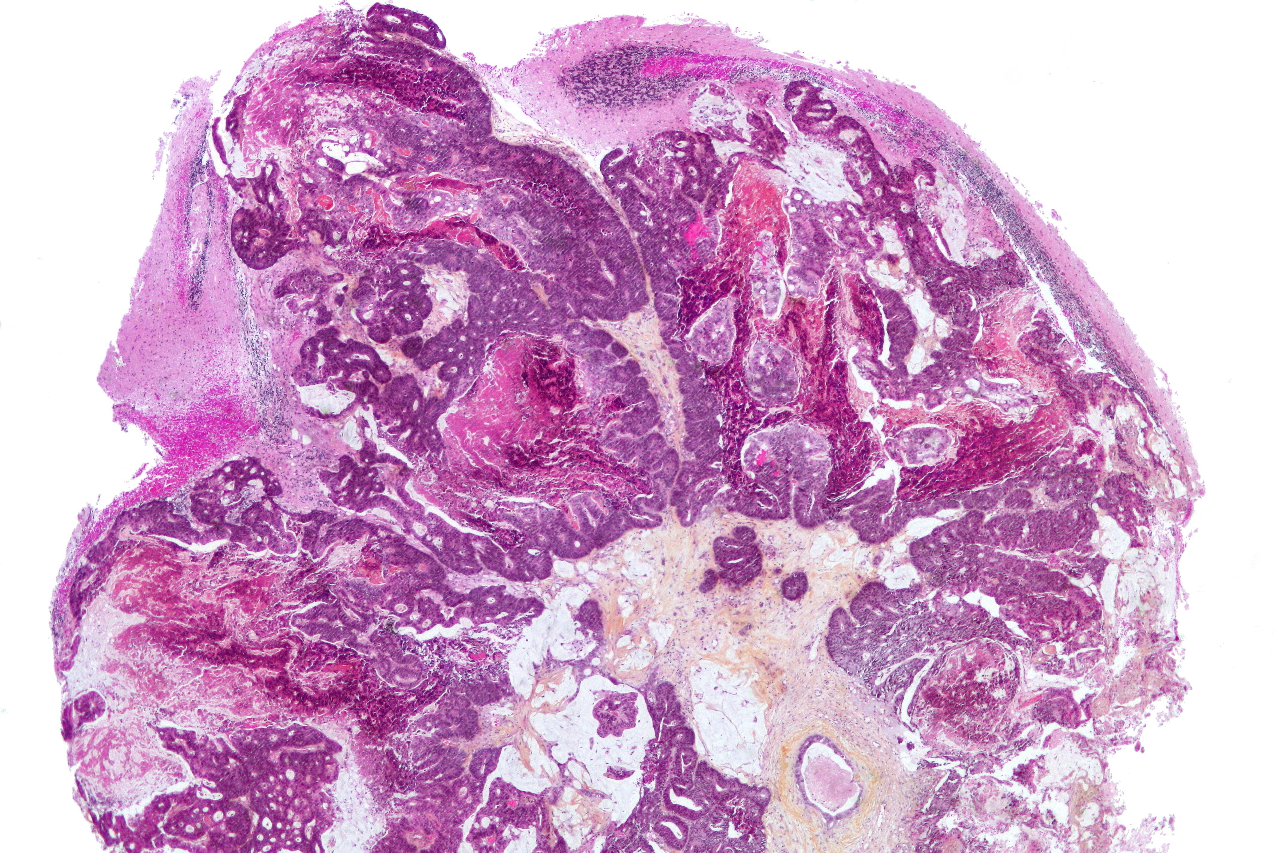 cancer de col uterin analize hpv virus blood test