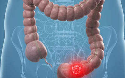 el cancer de colon como se manifiesta