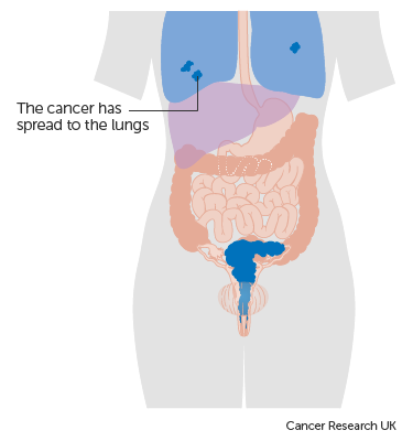 cervical cancer metastatic sites