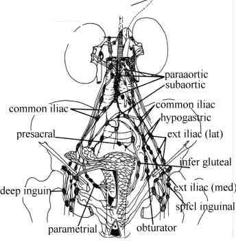 endometrial cancer lymphatic spread)