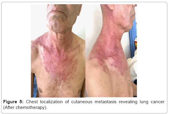 Urmărirea pacienţilor cu carcinom bazocelular